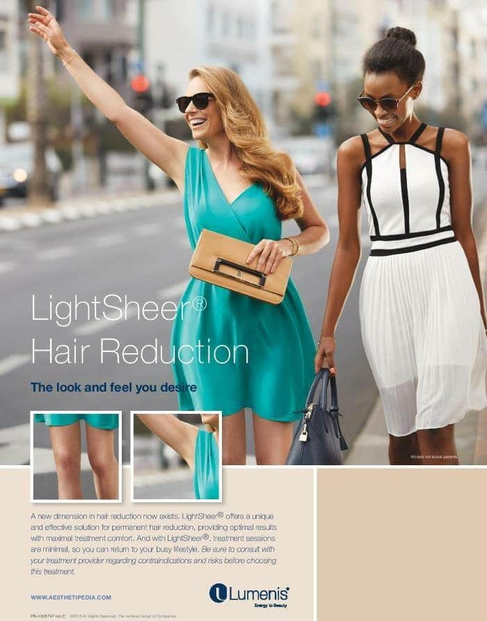 LightSheer laser hair removal