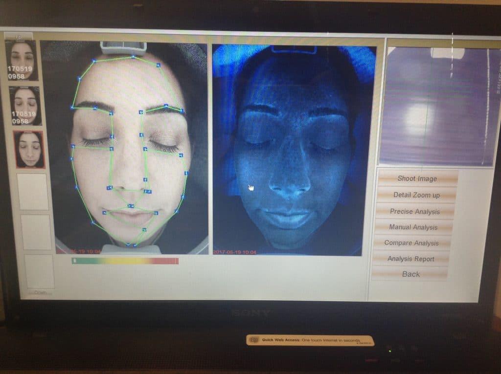 Skin scanner software