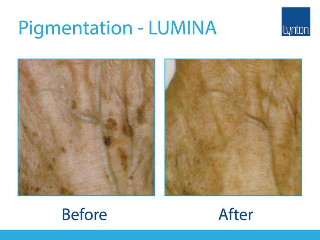 IPL pigment removal