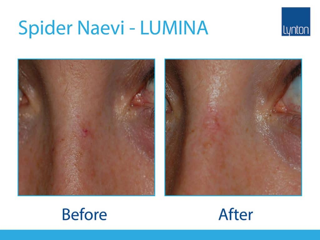 IPL spider naevus treatment